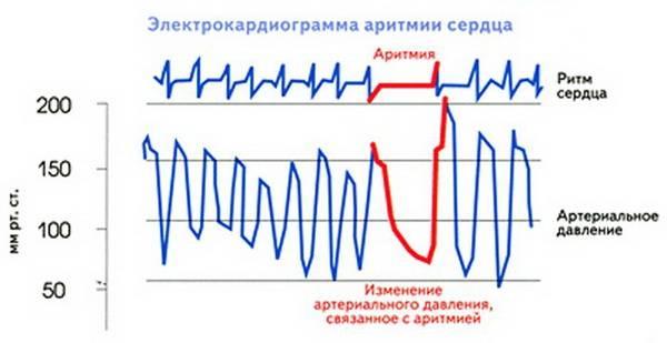 Кардиограмма аритмии плюс АД