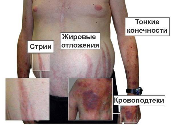 Болезнь Иценко-Кушинга при аденоме гипофиза
