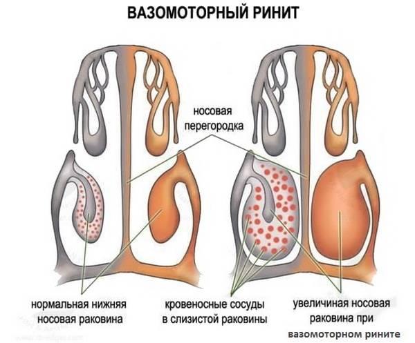 Механизм и причины вазомоторного ринита