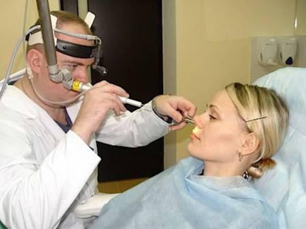 Диагностическая процедура при вазомоторном рините