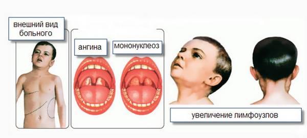 Схема симптомов инф. мононуклеоза