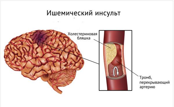 Патологические причины ишемического инсульта