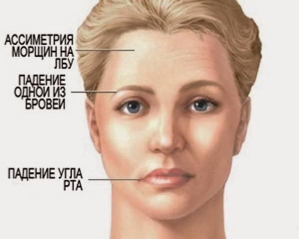 Лицо с признаками ишемического инсульта