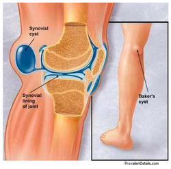 Схема коленного сустава, киста Бейкера