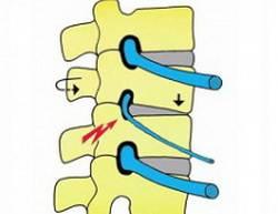 Схема позвоночника и корешкового синдрома