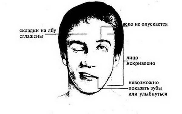 Признаки и симптомы неврита лицевого нерва