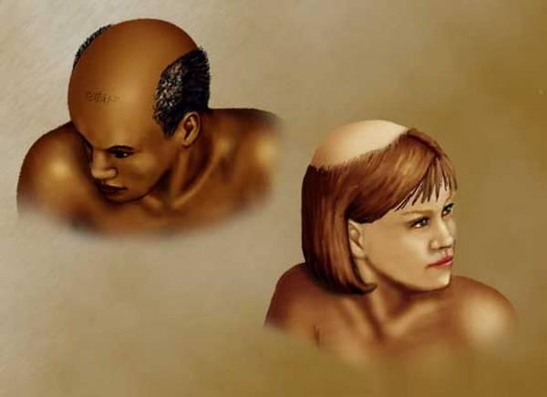Женщина  и мужчина - облысение