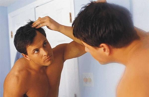 Мужчина перед зеркалом - облысение