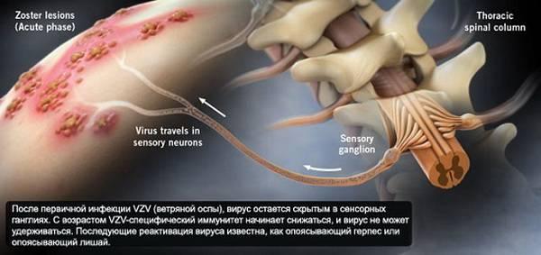 Связь герпеса со спинным мозгом