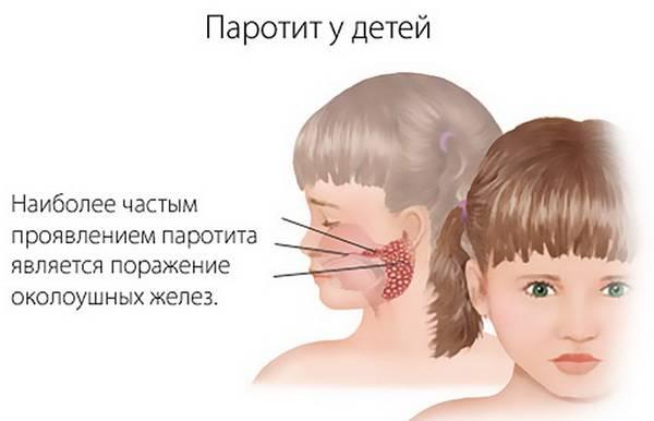 Схема симптомов свинки