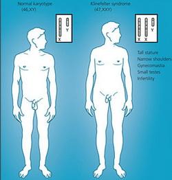 Схема нормального и генотипа Клайнфельтера