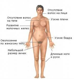 Симптомы синдрома Клайнфельтера схема