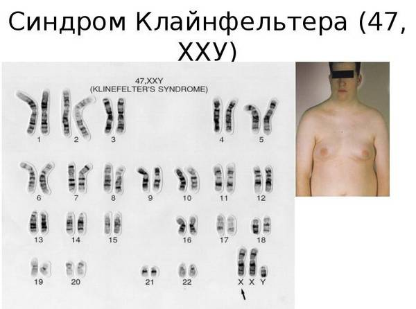 Хромосомный тип Клайнфельтера