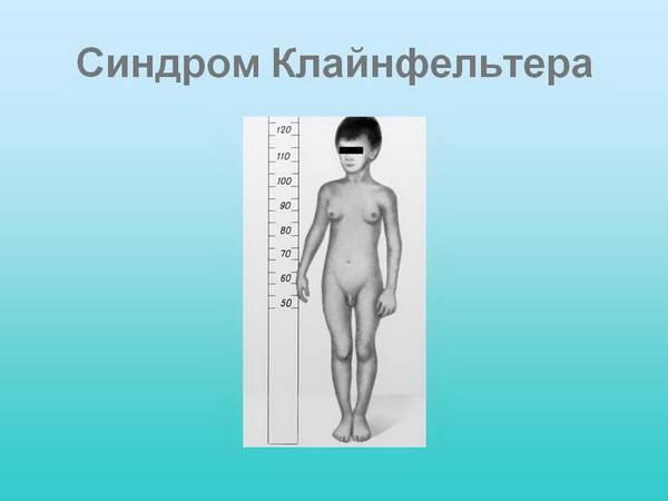 Измерение рлста больного