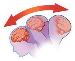 Механизм сотрясения мозга, 3 этапа