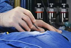 Хирургичкеский метод лечения фимоза