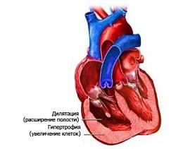гипертрофия при легочном сердце