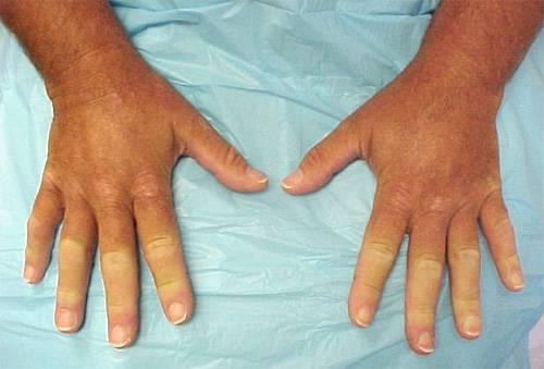 Медицина болезнь рейна продам ангиограф