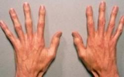 Пальцы при синдроме Марфана