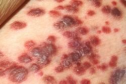 опухолевидные высыпания при синдроме Капоша