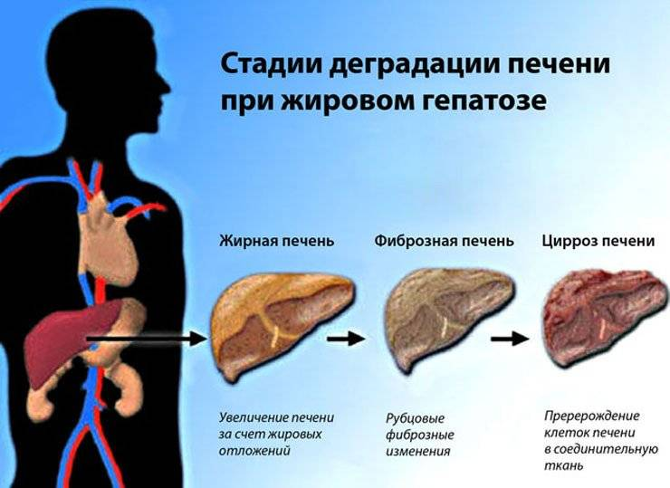 диета при гепатозе печени какая рекомендуется диета