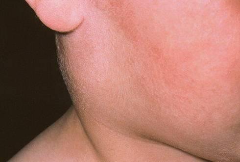 Околоушной лимфоаденит
