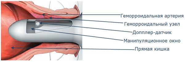 Аппарат для прошивки узла