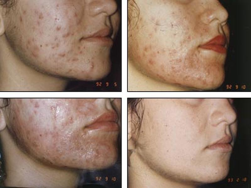 Тоник для лица для проблемной кожи эколаб