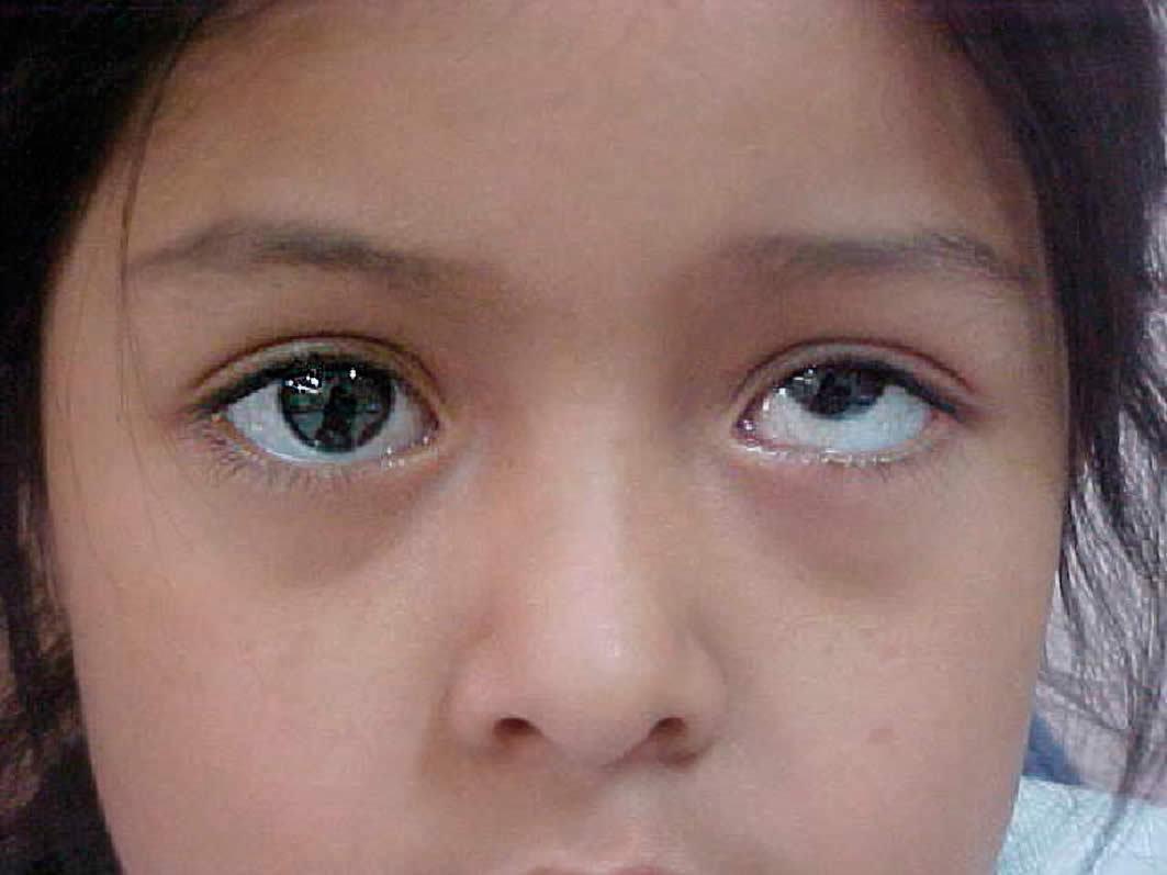 Купить очки для зрения недорого в спб онлайн