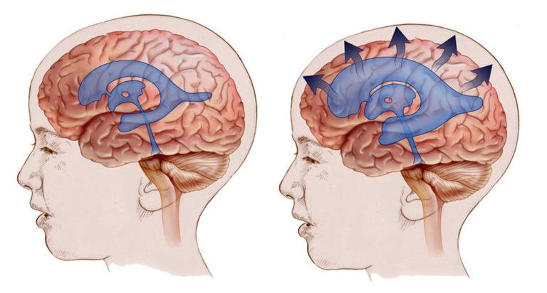 Проявление атрофии головного мозга
