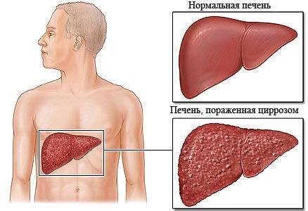 Онкомаркеры на рак печени