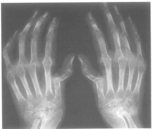 Лечение анкилоза локтевого сустава минеральная вода для суставов