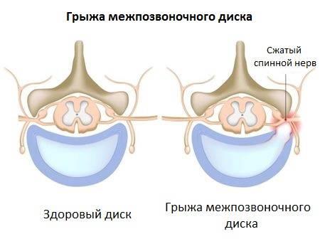 Симптомы грыжи межпозвоночного