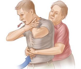 Первая помощь по извлечению инородных тел из уха, рта, носа, трахеи