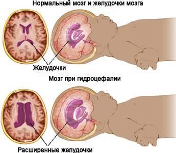 признаки повышенного холестерина в крови