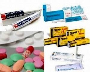 Наружные геморроидальных узлов лечение методы лечения