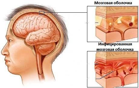Менингит1