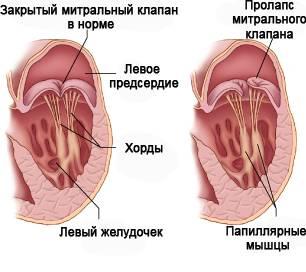Все о пролапсе митрального клапана и его лечении - Полисмед