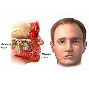 болезнь неврит
