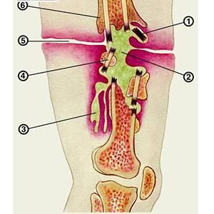 Болезнь остеомиелит