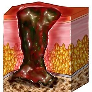Лечение остеомиелит