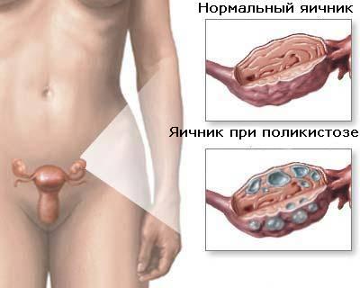 В организме женщины выработка