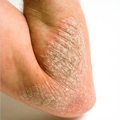 Может ли псориаз на колене появится на других участках кожи