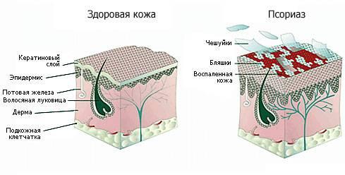 Псориаз – это воспаление