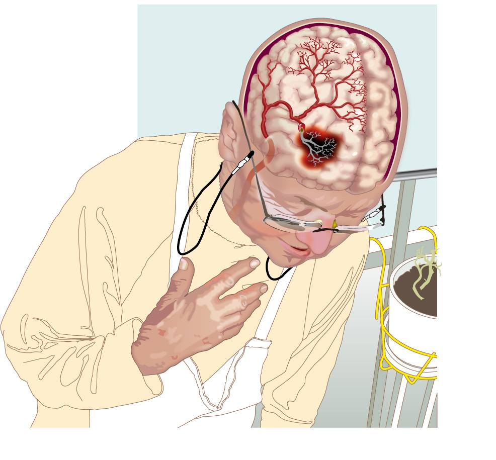 Нарушение мозгового кровообращения преходящее фото