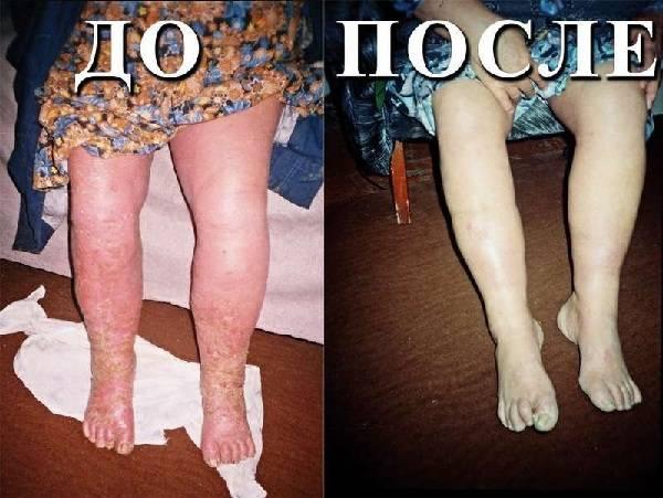 ноги больной до и после лечения трофической язвы