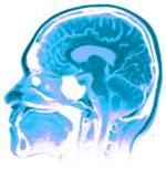 исследование мозга аденома: