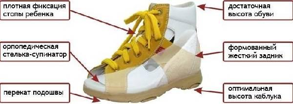 специальная обувь при вальгусной деформации