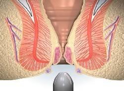 vnutrenniy-gemorroy-priznaki-i-lechenie