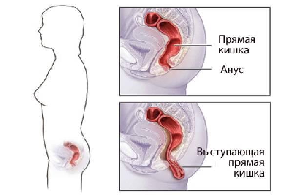 Анальный секс при трещине прямой кишки